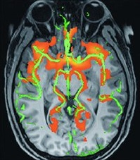Arterial spin labelling brain image